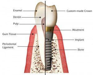 Parts of a tooth implant
