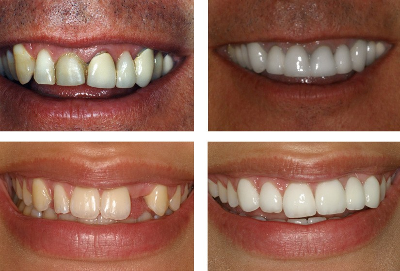 2 before and after multi implant cases