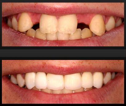 2 teeth implants