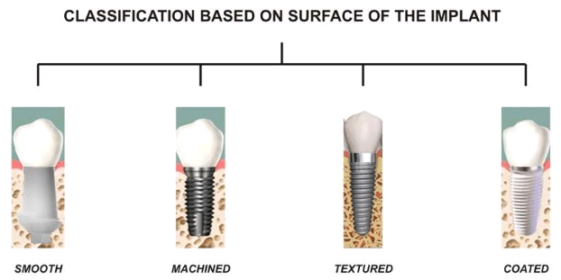 Types Of Dental Implants By Sizes Procedures And Materials