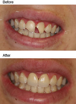 Dental Crown Before And After