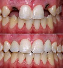 before after abutment