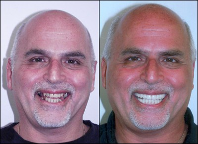 before and after crown placement smile