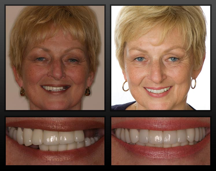 before-and-after-dental-implant