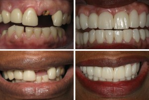 before and after multiple teeth