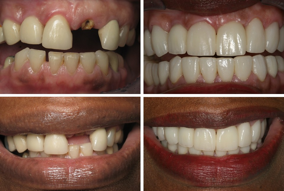 21 dental implant before and after photos