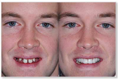 main dental implants before and after