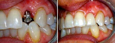 single tooth before and after