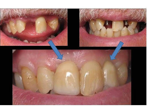 three stage mini dental implants porcelain crowns