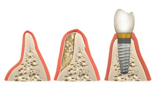 Dental Bone Graft Materials Cost And Procedure