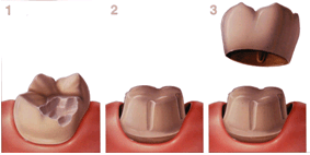 How Much Is A Crown >> Dental Crowns Cost Types And Procedure