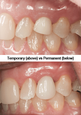 Non-occlusal Function Provisional vs Permanent Crown