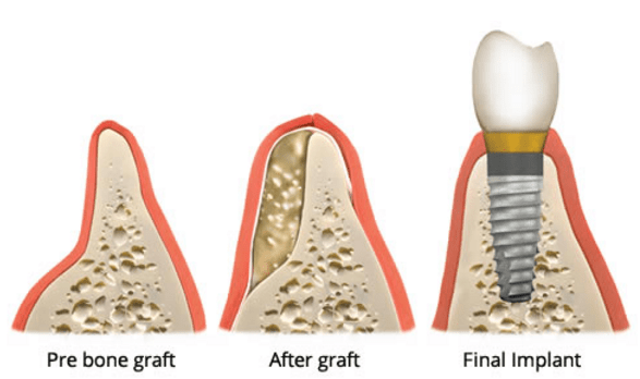 Complete Dental Implant Surgery Guide - What to Expect