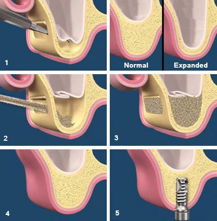 Sinus-Lift-Process