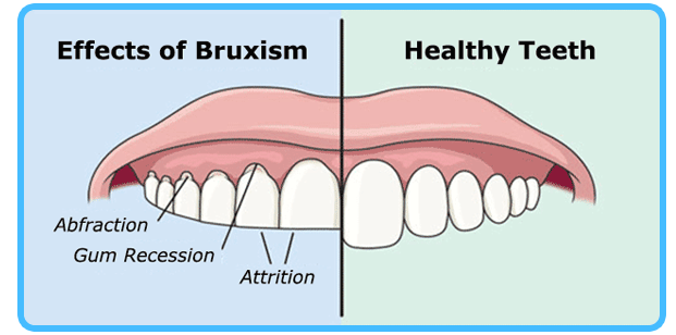 bruxism-effects