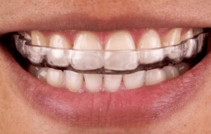 bruxism-mouth-guard