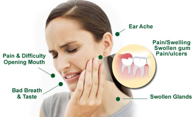 wisdom-teeth-pain-symptoms
