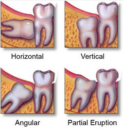 types-of-wisdom-tooth-impactions