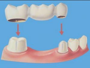 Which dental option is best denture or bridge